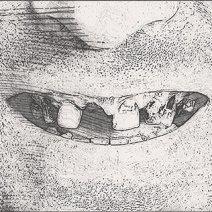 Приснилось, что вырвал зуб сам себе: что значит сон?