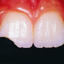 Приснилось, что зуб сломался: к чему бы это?